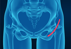 Anterior Total Hip Replacement