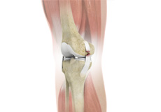 Complex Knee Injuries