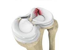 Meniscus Injury or Tear
