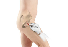 Minimally Invasive Total Hip Replacement