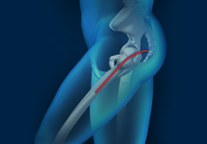 Posterior Total Hip Replacement
