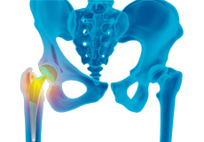 Revision Total Hip Replacement